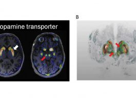A new method to map the dopamine system in Parkinson's patients