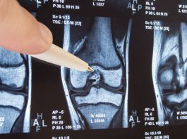 Advanced osteoarthritis: the curse and blessing of total joint arthroplasties