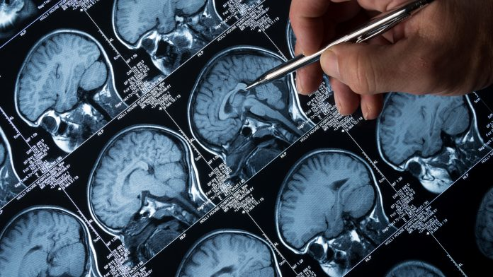 familial Alzheimer's disease